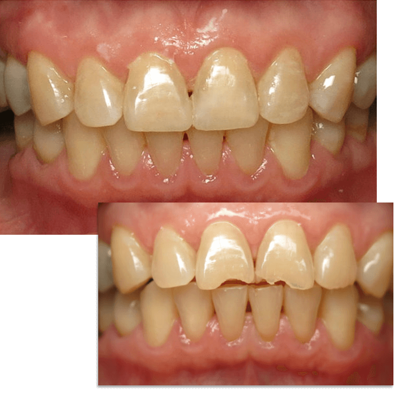 collage picture of Smile Case 1