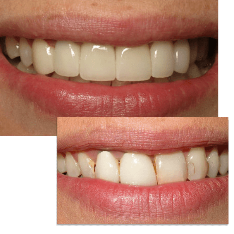 Collage of smile case 10