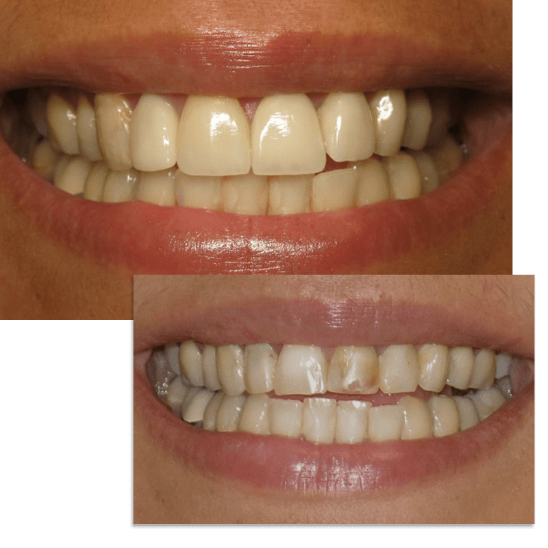 Collage pic of smile case 2