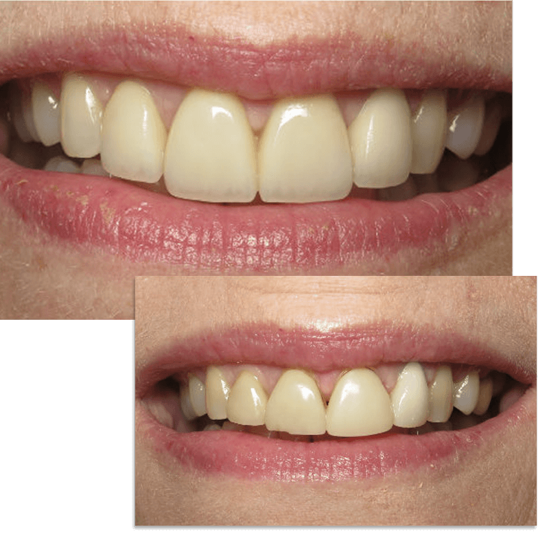 Collage of smile case 3