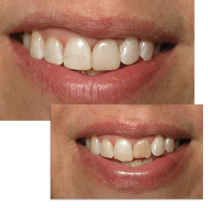 Collage of smile case 6