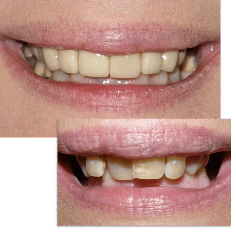Collage of smile case 7