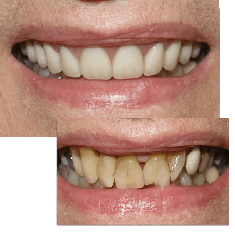 Collage of smile case 8