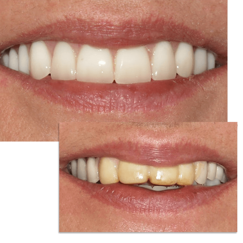 Collage of smile case 9