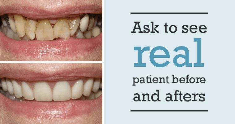 Ask to see real patient before and after