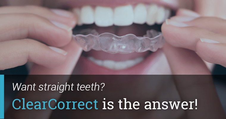 Want straight teeth? ClearCorrect is the answer!