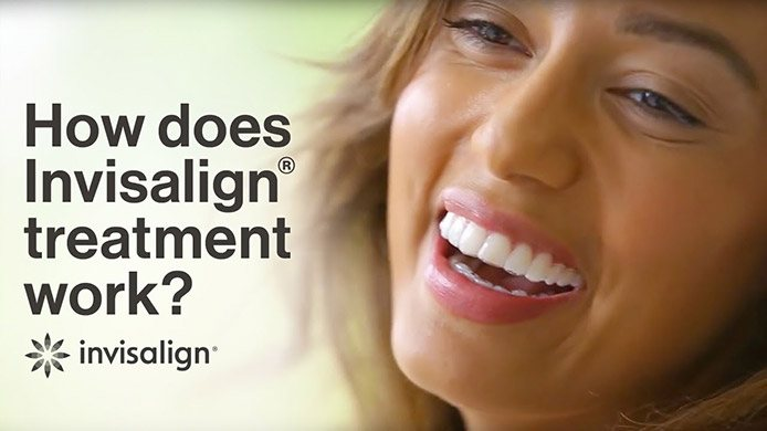Watch to see how Invisalign® works!