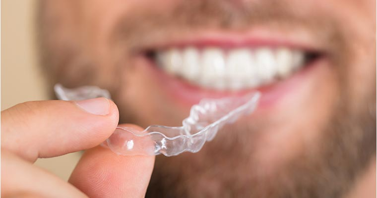 Close up of a bearded man holding Invisalign clear aligners.